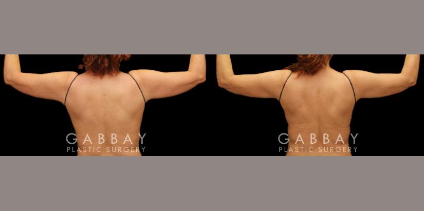 Patient 04 Back View Lipo & J Plasma of Bilateral Arms, Bbr, Waist,Abdomen Gabbay Plastic Surgery