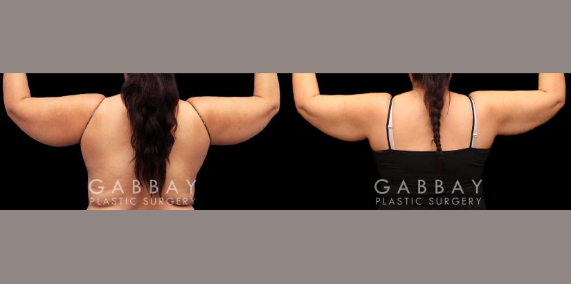 Patient 05 Back View Lipo Arms Gabbay Plastic Surgery