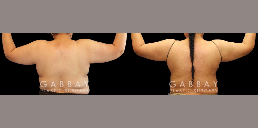 Patient 09 Back View Liposuction BBR and Arms with J-Plasma Gabbay Plastic Surgery