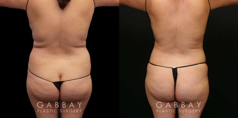Patient 08 Back View Lipo to Full Abdomen, Bra Roll and Pubis Gabbay Plastic Surgery