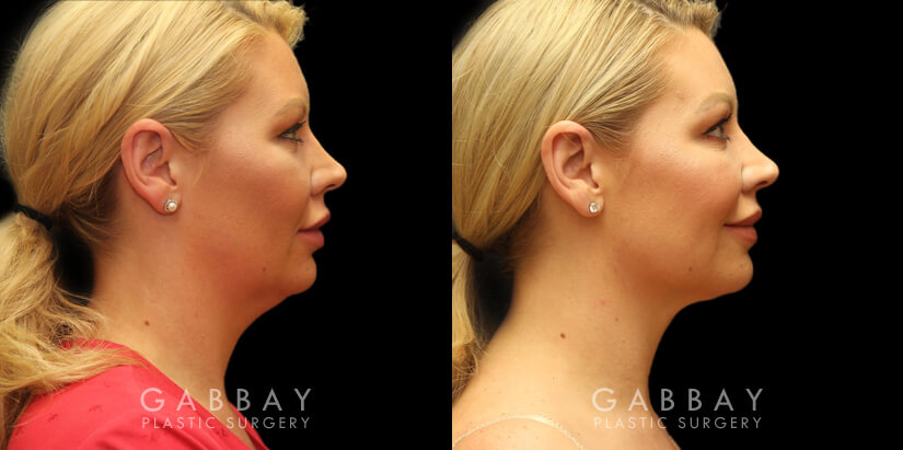 Patient 01 Right Side View Chin Lipo with J Plasma Gabbay Plastic Surgery