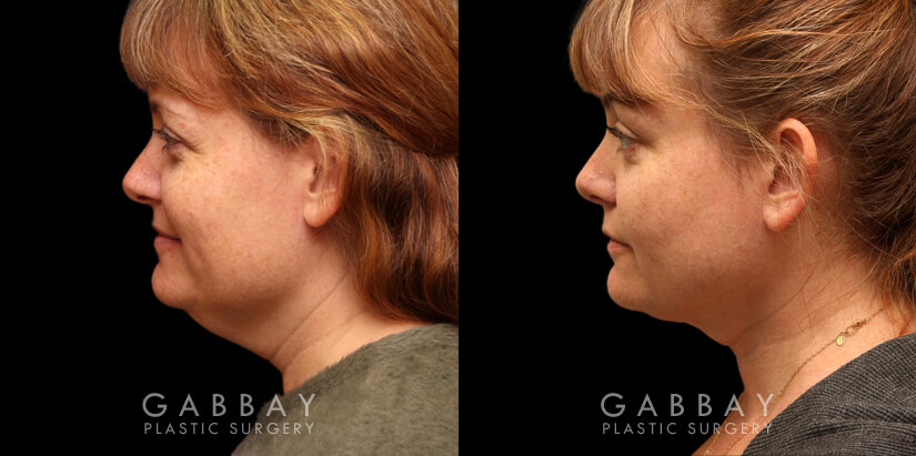 Patient 02 Left Side View Lipo to Chin and Jaw Gabbay Plastic Surgery