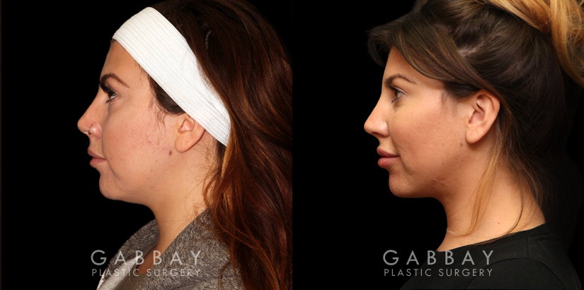Patient 09 Left Side View Buccal Fat Pad Removal Gabbay Plastic Surgery