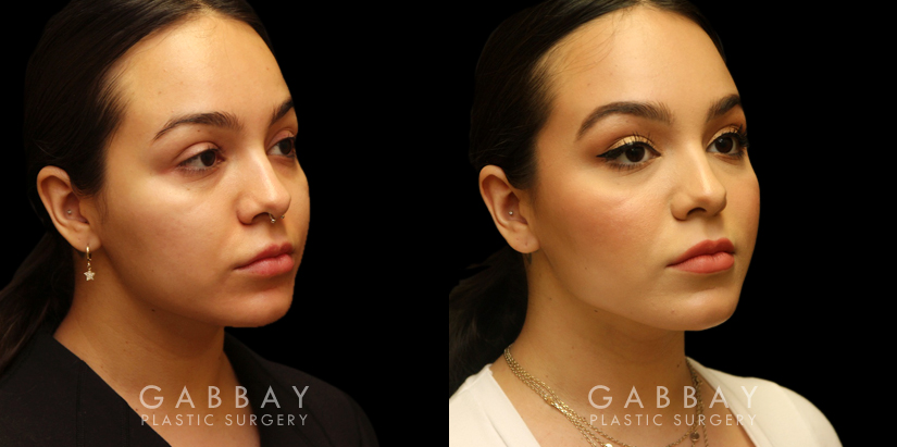 Patient 07 3/4th Right Side View Buccal Fat Removal with Lipo to Chin Gabbay Plastic Surgery