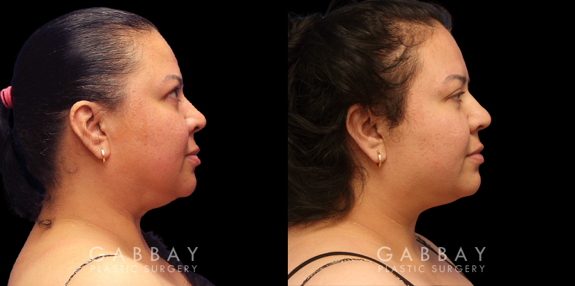 Patient 05 Right Side View Chin/Neck Liposuction Gabbay Plastic Surgery