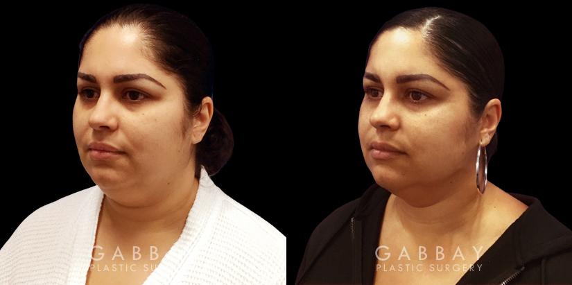 Patient 03 3/4th Left Side View Lipo Neck Gabbay Plastic Surgery
