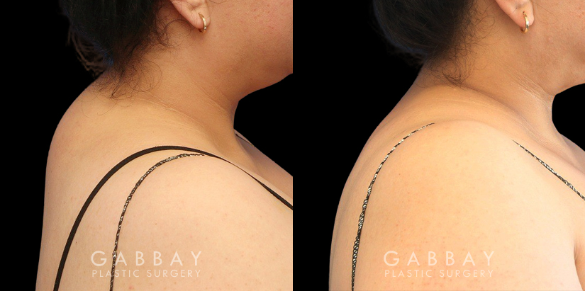 Patient 03 Right Side View Liposuction BBR and Arms with J-Plasma Gabbay Plastic Surgery