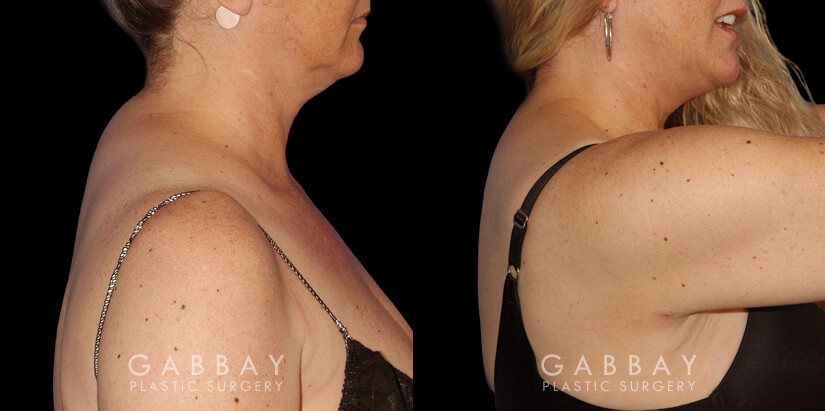 Patient 01 Right Side View Liposuction to Abdomen, Waist, Tailbone & Arms Gabbay Plastic Surgery