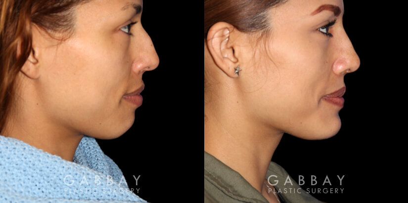 Patient 01 Right Side View Chin implant, Rhinoplasty, BAM Gabbay Plastic Surgery