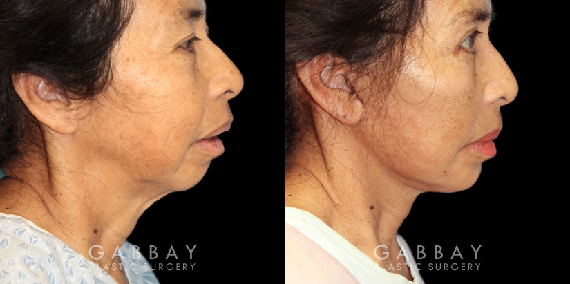 Patient 02 Right Side View Chin Implant, facelift, Bleph Gabbay Plastic Surgery