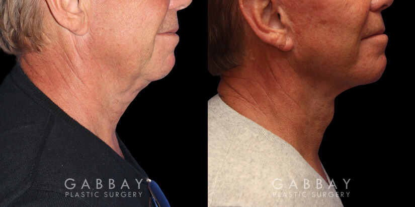 Patient 01 Right Side View facelift, full neck lift, upper blepharoplasty Gabbay Plastic Surgery
