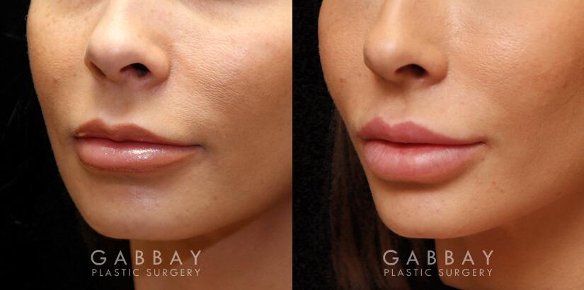 Lip Augmentation Patient 02 3/4th Left Side View Gabbay Plastic Surgery