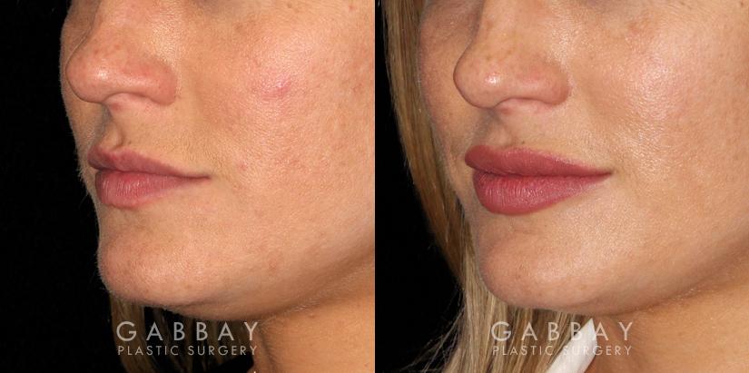 Patient 03 3/4th Left Side View Lip Augmentation Gabbay Plastic Surgery