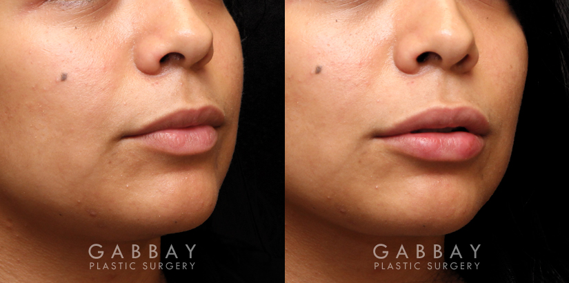 Patient 04 3/4th Right Side View Lip Augmentation Gabbay Plastic Surgery