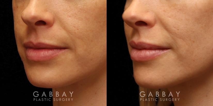 Patient 05 3/4th Left Side View Lip Augmentation Gabbay Plastic Surgery