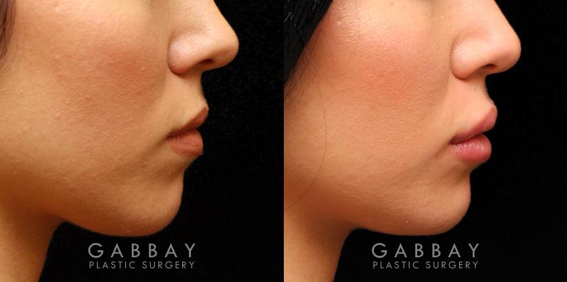 Patient 07 Right Side View Lip Augmentation Gabbay Plastic Surgery