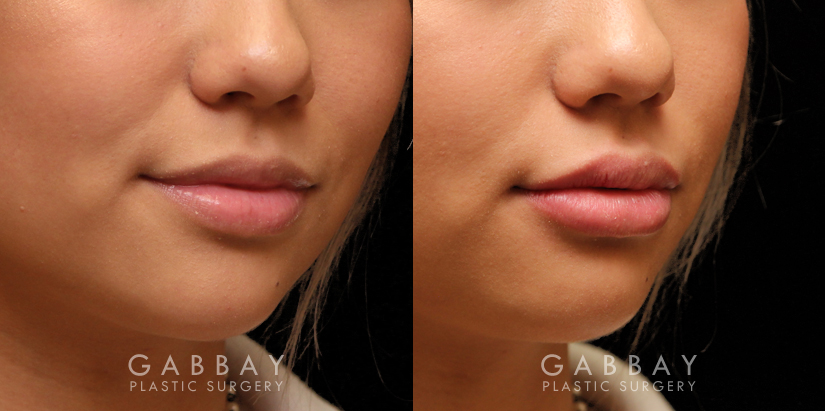 Patient 06 3/4th Right Side View Lip Augmentation Gabbay Plastic Surgery
