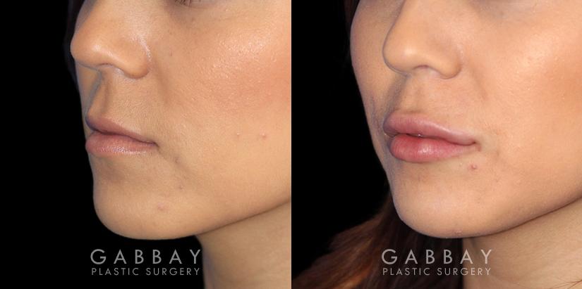 Patient 08 3/4th Left Side View Lip Augmentation Gabbay Plastic Surgery