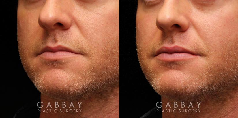 Patient 10 3/4th Left Side View Lip Augmentation Gabbay Plastic Surgery