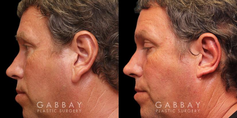 Patient 01 Left Side View Ear reduction Gabbay Plastic Surgery
