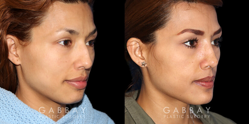 Patient 01 3/4th Right Side View Rhinoplasty Gabbay Plastic Surgery