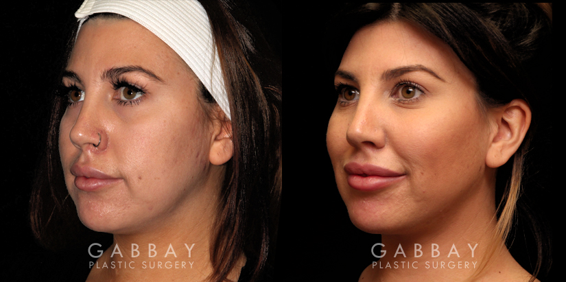 Patient 02 3/4th Left Side View Buccal Fat Pad Removal Gabbay Plastic Surgery