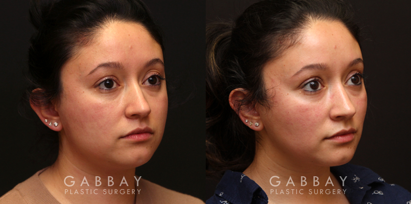 Patient 04 3/4th Right Side View Buccal Fat Pad Removal Gabbay Plastic Surgery