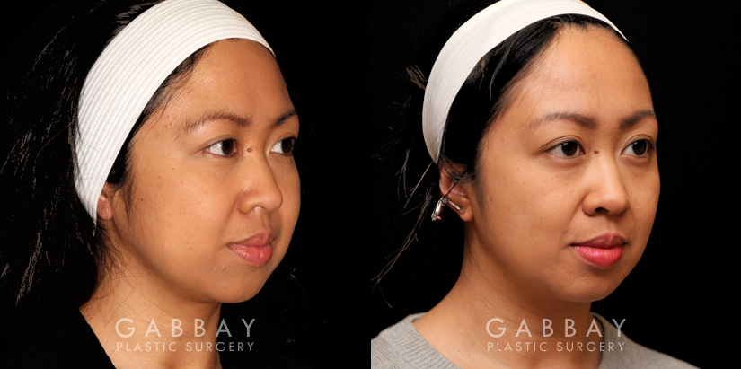 Patient 05 3/4th Right Side View Buccal Fat Pad Removal Gabbay Plastic Surgery