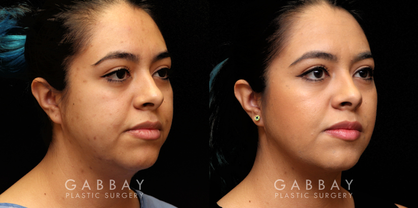 Patient 10 3/4th Right Side View Buccal Fat Pad Removal Gabbay Plastic Surgery