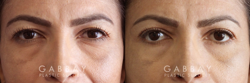 Patient 01 Front View Blepharoplasty Gabbay Plastic Surgery