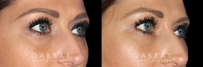 Patient 02 3/4th Right Side View Upper Eyelid Blepharoplasty with Fat Transfer to Face Gabbay Plastic Surgery