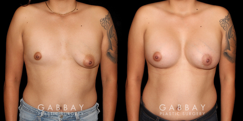 Patient 07 Front View Breast Augmentation with Lift to Right Breast Gabbay Plastic Surgery