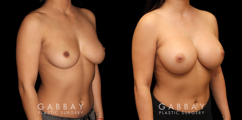 Patient 01 3/4th Right Side View Breast Augmentation Silicone Implants Gabbay Plastic Surgery