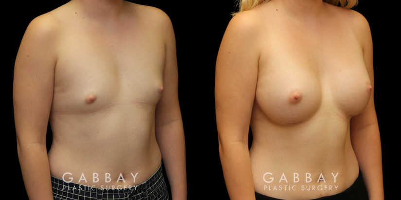 Patient 10 3/4th Right Side View Breast Augmentation with Silicone Implants Gabbay Plastic Surgery