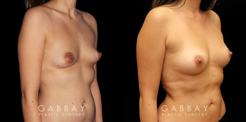 Patient 01 3/4th Right Side View Breast Fat Grafting Gabbay Plastic Surgery
