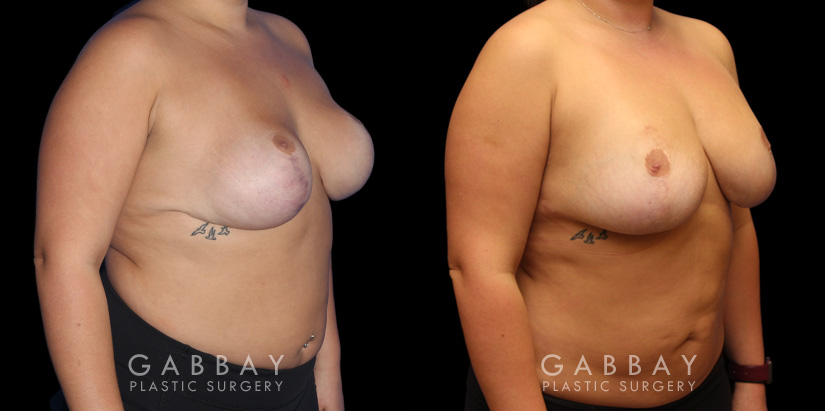 Patient 02 3/4th Right Side View Breast Fat Grafting Gabbay Plastic Surgery