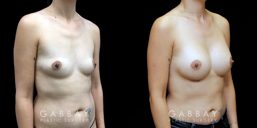 Patient 03 3/4th Right Side View Breast Augmentation Silicone Implants Gabbay Plastic Surgery