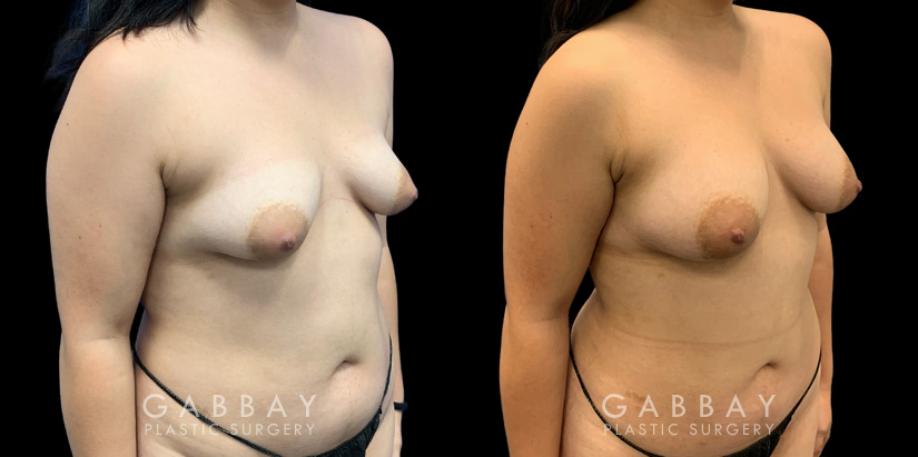 Patient 04 3/4th Right Side View Breast Fat Grafting Gabbay Plastic Surgery