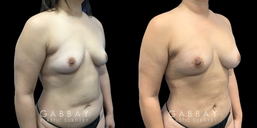 Patient 05 3/4th Right Side View Breast Fat Grafting Gabbay Plastic Surgery
