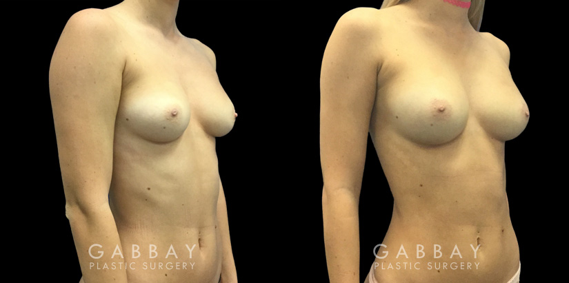 Patient 06 3/4th Right Side View Breast Fat Grafting Gabbay Plastic Surgery