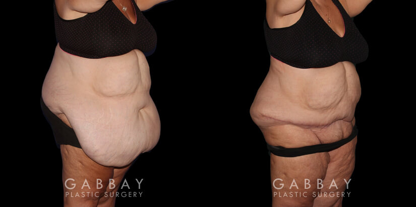 Patient 01 3/4th Right Side View Abdominal Panniculectomy Gabbay Plastic Surgery