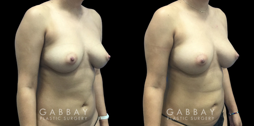 Patient 08 3/4th Right Side View Breast Fat Grafting Gabbay Plastic Surgery