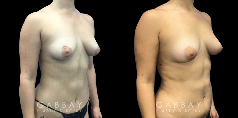 Patient 09 3/4th Right Side View Breast Fat Grafting Gabbay Plastic Surgery