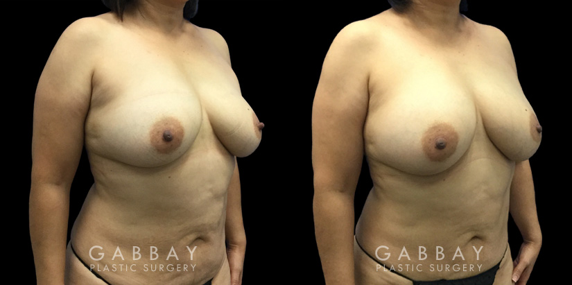 Patient 10 3/4th Right Side View Breast Fat Grafting Gabbay Plastic Surgery