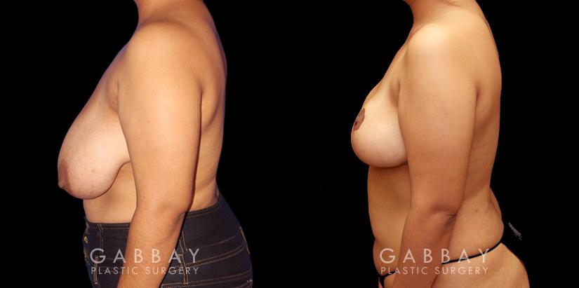 Patient 03 Left Side View Mastopexy Gabbay Plastic Surgery