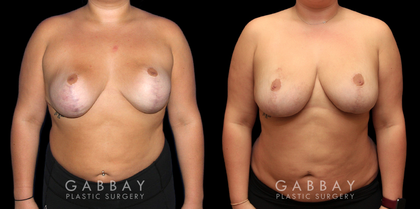 Patient 03 Front View Revision Breast Reduction, Revision Wide Mastopext, Belladerm Gabbay Plastic Surgery