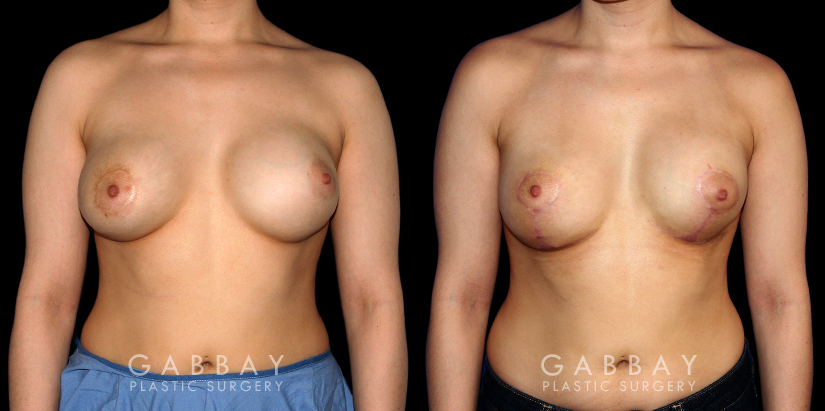 Patient 06 Front View Breast Revision -Remove and Replace Saline & Full Lift Gabbay Plastic Surgery