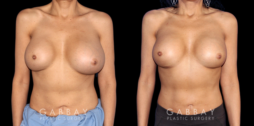 Patient 07 Front View Breast Revision Gabbay Plastic Surgery