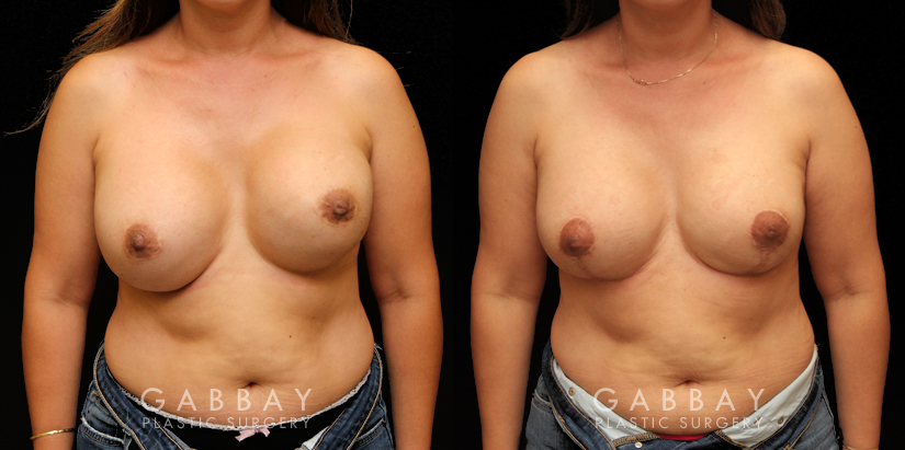 Patient 10 Front View Removal and Replacement with Lift Silicone Implants Gabbay Plastic Surgery