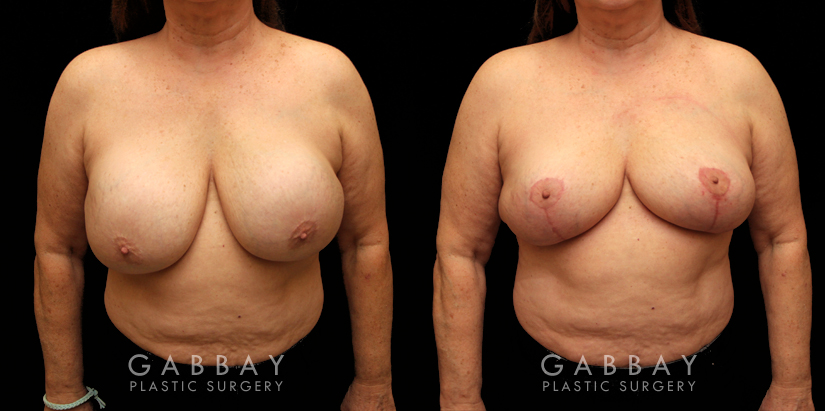 Patient 17 Front View Implant Removal and Lift Gabbay Plastic Surgery